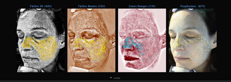 diagnostic peau et soin sur mesure